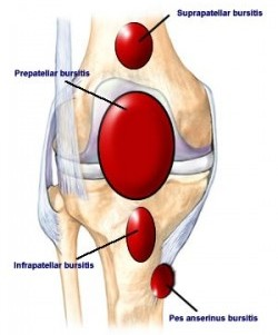 Knee bursitis is a painful condition