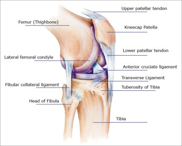 patellar tendon rupture[1]