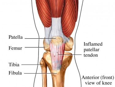 Knee tendonitis refers to the swelling and inflammation of the tendons in the knee area