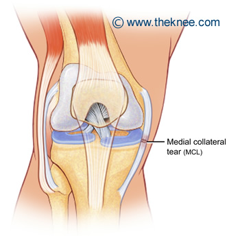 what is an mcl injury the knee : mcl diagram - findchart.co
