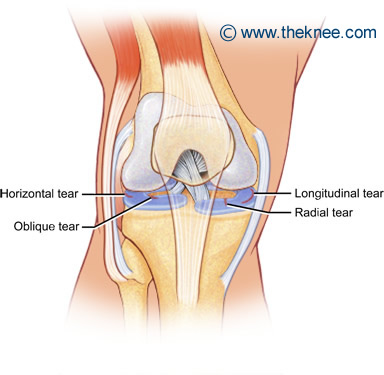 MENISCUS EXERCISES KNEE TEAR FOR
