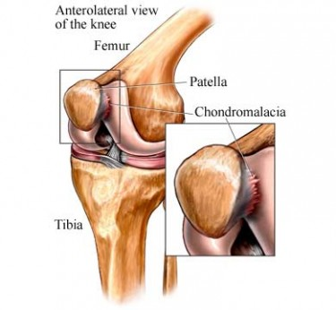 Chondromalacia of the Patella image