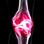 Dietary Supplement and Drug Equal for Knee Osteoarthritis