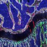 stem cell 2